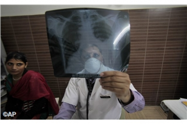 Vatican official opens global TB meeting